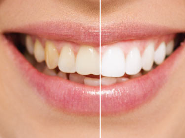 Teeth Whitening in Grand Praire