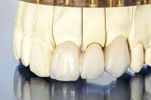 porcelain Dentures Grande Prairie
