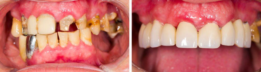 Cosmetic Dentistry Grande Prairie