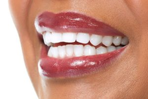 teeth whitening grande prairie