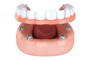 implant dentures higson dental dentist near you