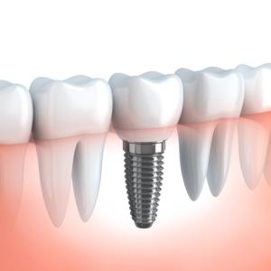 dental implants higson dental grand prairie alberta