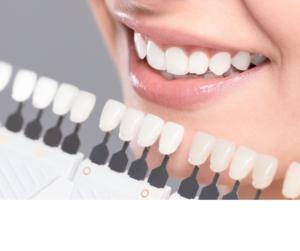 teeth whitening grande prairie higson dental alberta