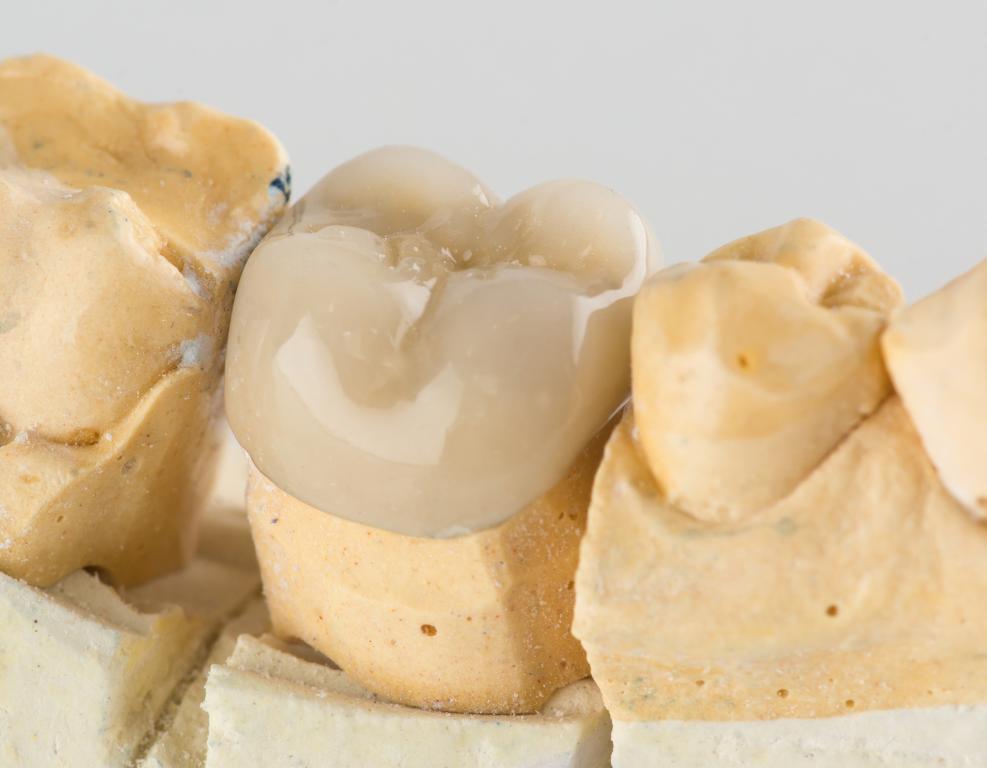 dental crown higson dental