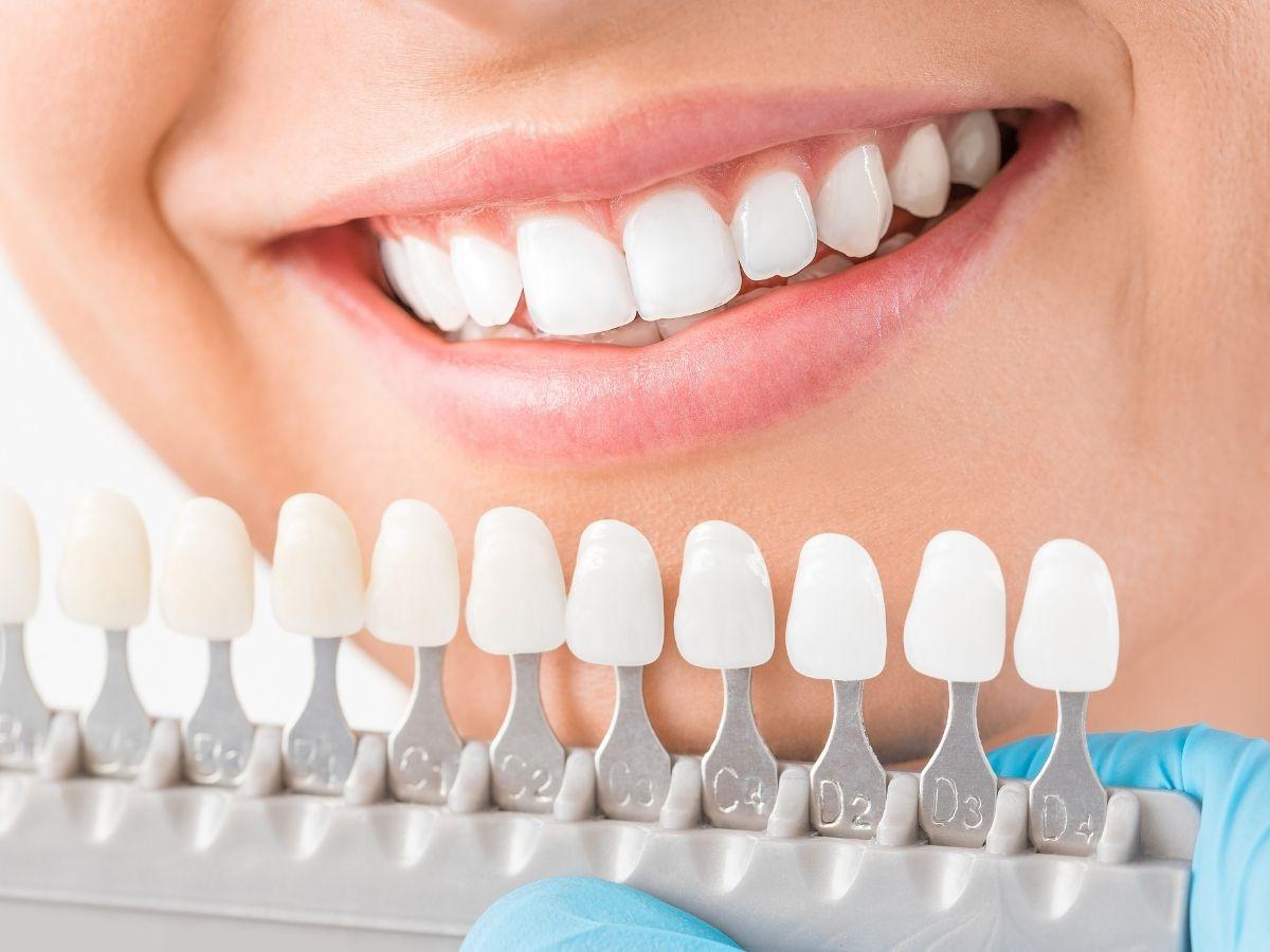 porcelain veneer teeth higson dental group
