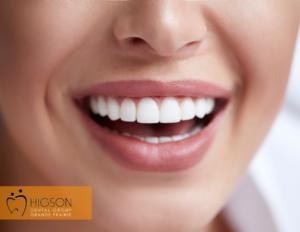 cosmetic dentist near you higson dental grande prairie