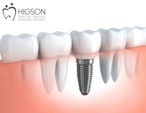dental implant higson dental group